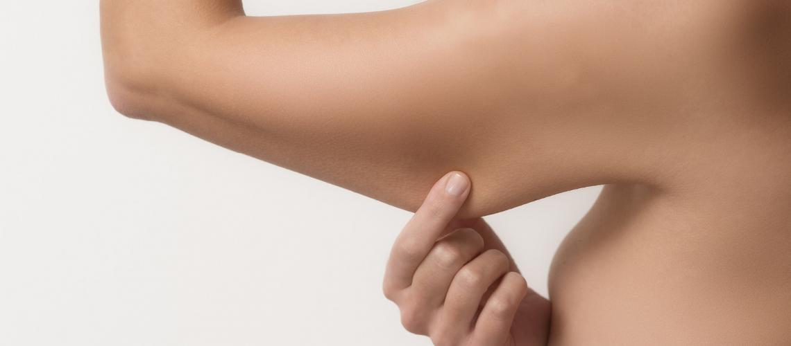 https://doctorhussein.com/wp-content/uploads/2021/09/My-arms.jpg